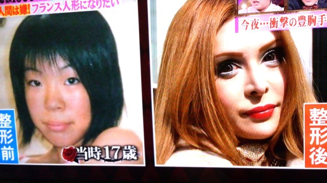 "Why This Japanese Woman Turned into a ""Plastic Surgery Cyborg"""