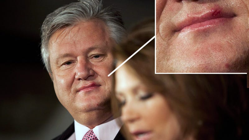 Marcus Bachmann Cold Sore Coincides With Moment of Fame