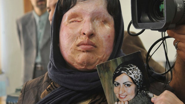 Iranian Woman Blinded By Acid Saves Attacker From Eye For An Eye