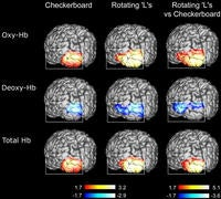 An Infrared Brain Scan That Can Determine What You Want