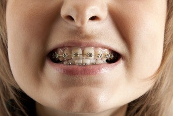 My Nine Years Of Orthodontic Torture