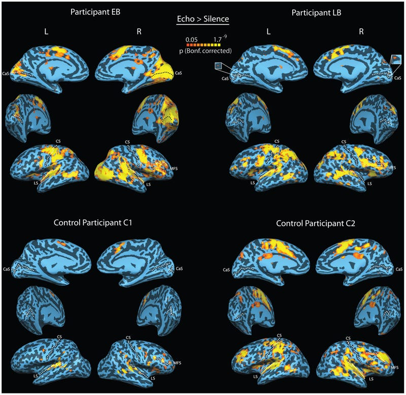 Mapping the Brains of Human Echolocators
