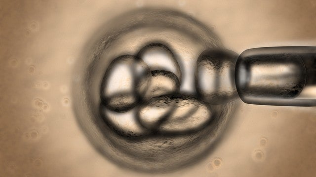 European Court Bans Patenting Many Types of Stem Cell Research; Science Freaks Out