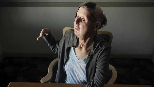 Chimp Attack Victim: I Can Smile Again