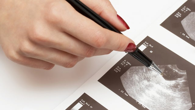 Doctors May Be Diagnosing Healthy Pregnancies As Miscarriages