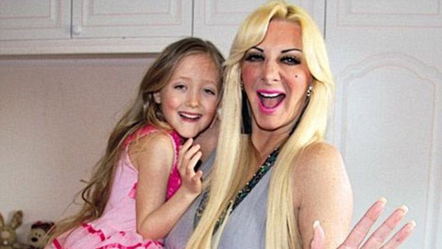 'Human Barbie' Trapped in Vicious Cycle of Promising Plastic Surgery to 7-Year-Old