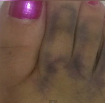 Woman Sees the Face of Jesus in Her Dirty Messed Up Toe
