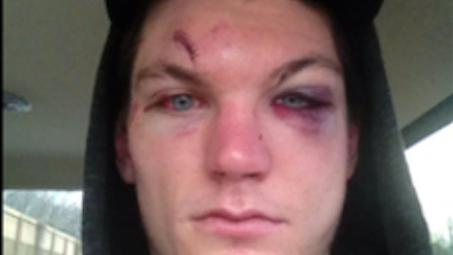 This Is What A Hockey Player Looks Like After Breaking His Face In A Fight
