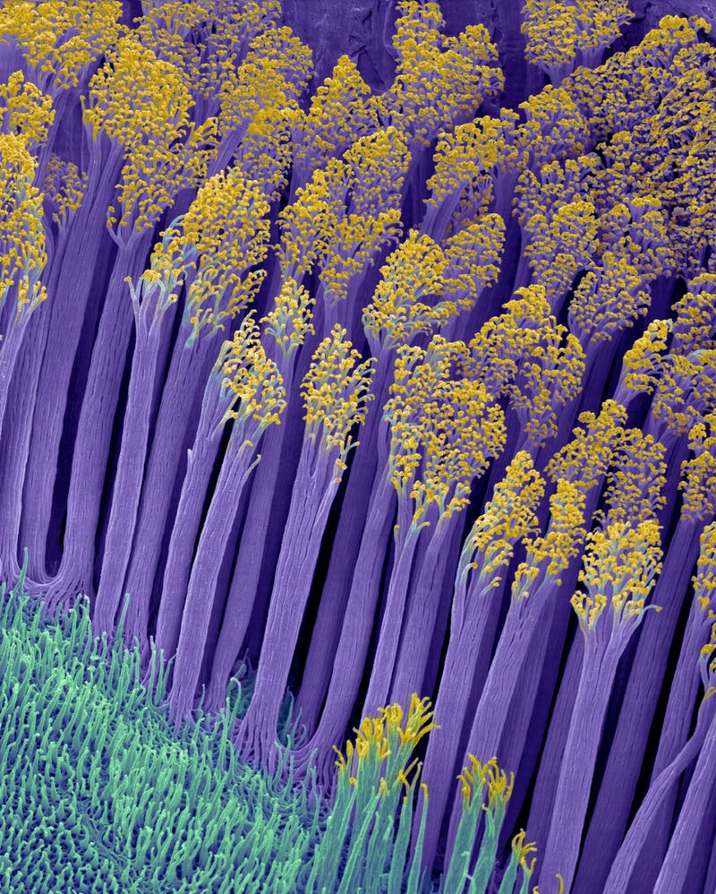 The Astounding And Horrific World As Seen Under A Microscope