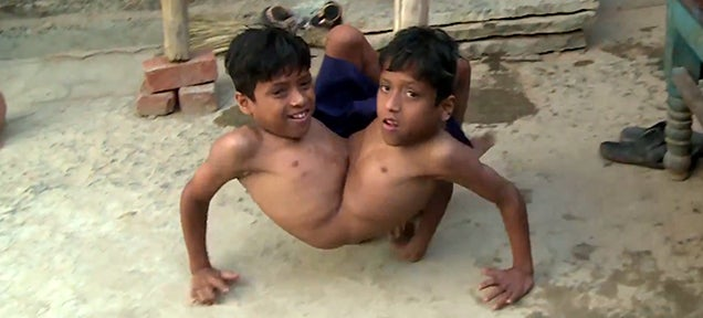 The amazing story of two conjoined twins who live happily in India