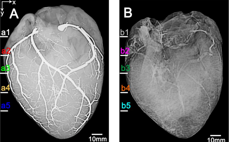 These Are the First Ever Images of a Heart Injected With Liquid Metal