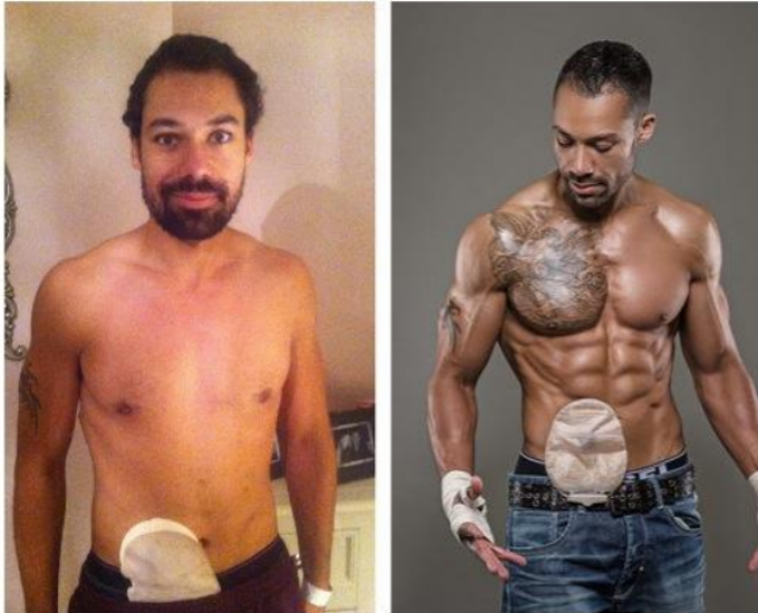 Male Bodybuilding Model Shows Off His Colostomy Bag