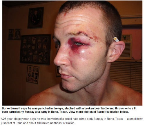 Gay Man in Texas Viciously Attacked