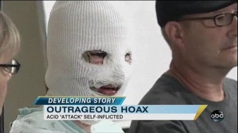 Acid-Attack Woman Admits It Was A Hoax