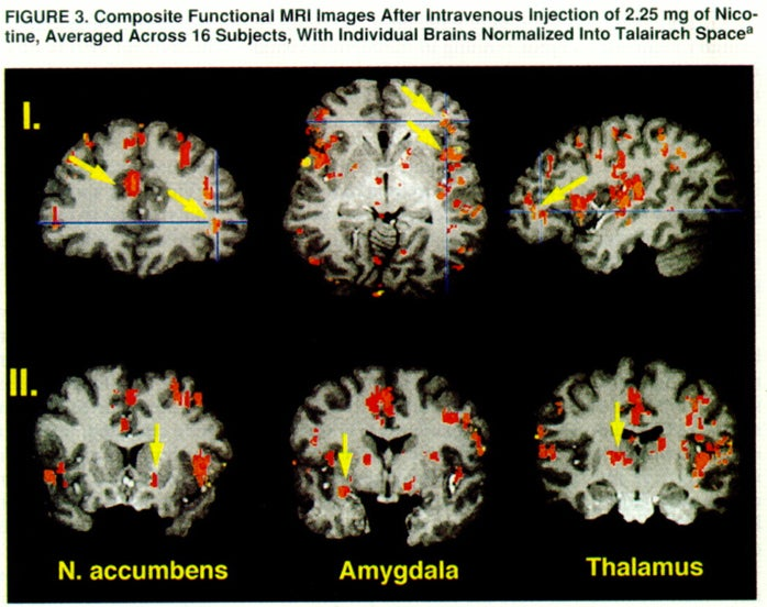 This is what your brain on drugs really looks like