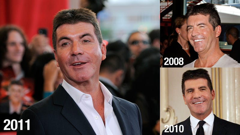 What's Going On With Simon Cowell's Face?