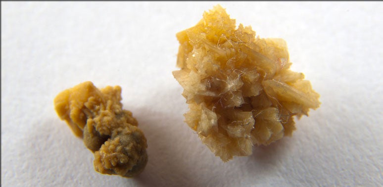 What Is Causing the Kidney Stone Epidemic?