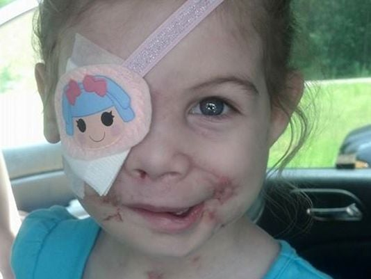 KFC kicked out girl scarred by dog attack saying she scared customers