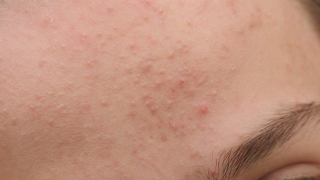 Acne Has Taunted Women Since The Dawn Of Time