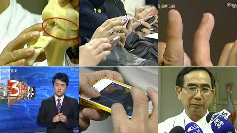 Taiwanese Man Destroys Finger While Playing Video Games