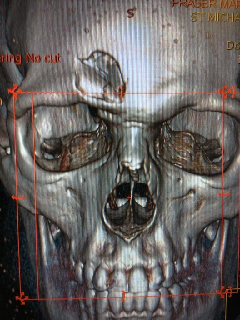The Purported CT Scan Of Mark Fraser's Head Is Terrifying