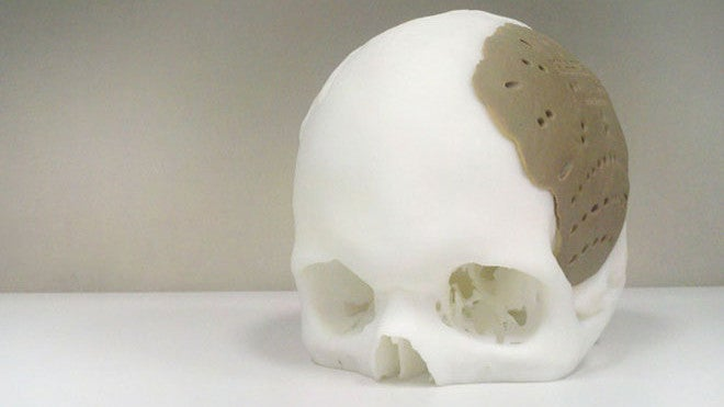 Dude Has 75 Percent of His Skull Replaced By 3D-Printed Replica
