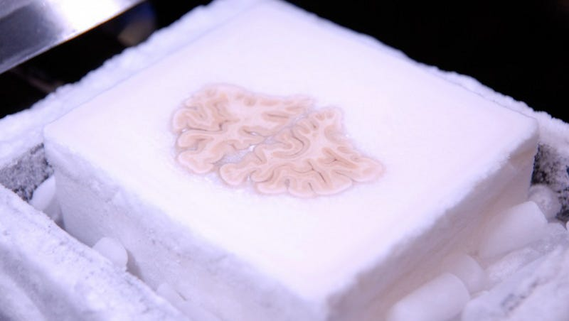 This famous brain was cut into 2,400 slices and uploaded to the cloud
