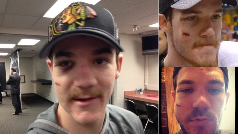 Andrew Shaw Is More Swelling Than Man