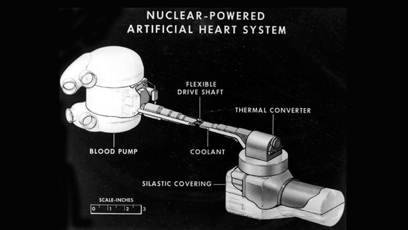 A Government Program Wanted to Make the Perfect Artificial Heart—With Radioactive Decay