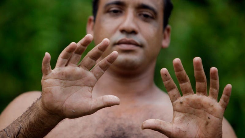 This man's hands are no optical illusion
