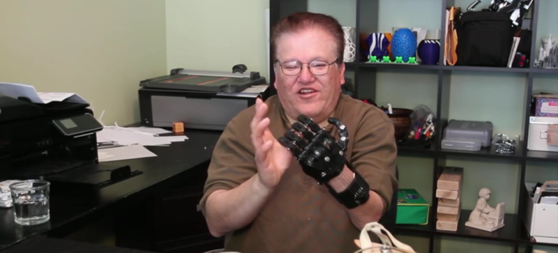 Man Explains Why He Prefers $50 3D-Printed Hand to $42,000 Prosthesis