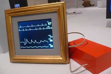 Telepresence Frame: A Black Box for Life Support Patients