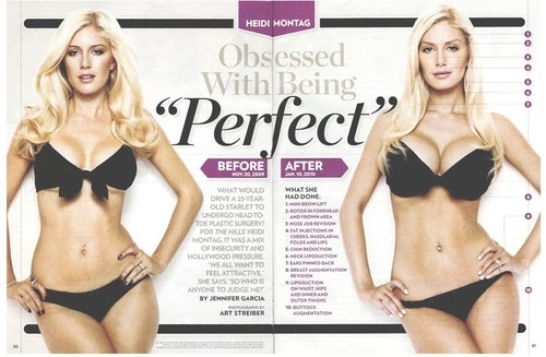 Heidi Montag's Big Plastic Surgery Reveal: Is This a Human Anymore?