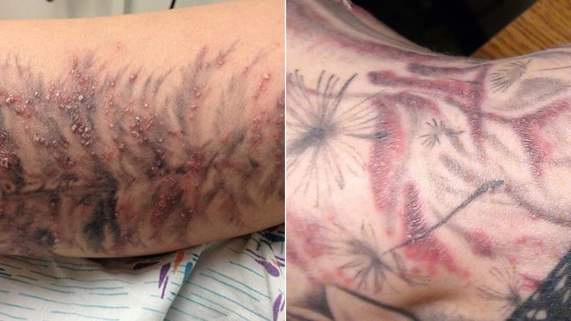 Red, Bubbly Rashes Will Make Your Dumb Tattoos Even Dumber