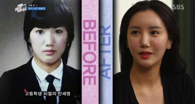 Depressing? Inspirational? Reverse Plastic Surgery Show Hits Korea