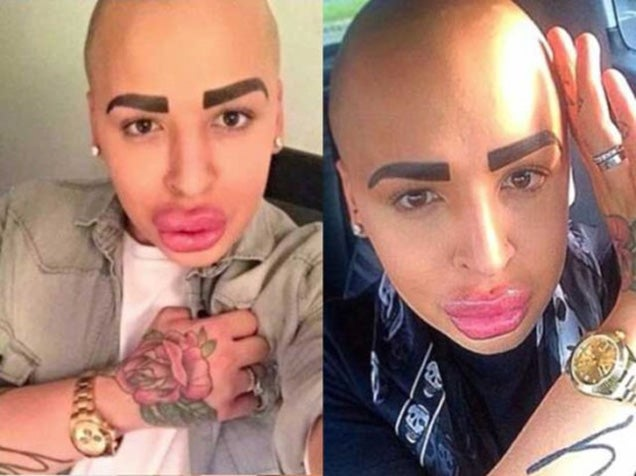 Guy spends $150,000 in plastic surgery to look like Kim Kardashian