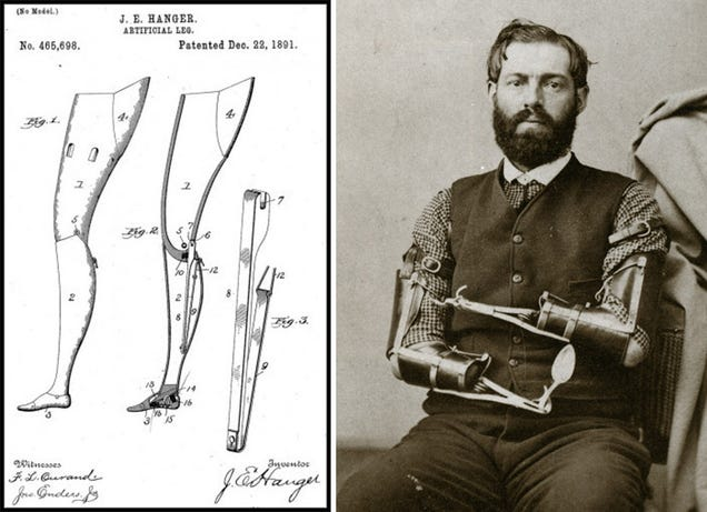 The Fascinating Untold History of War and Prosthetics