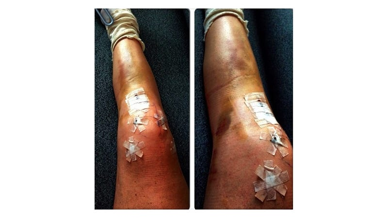 Lindsey Vonn's Busted Knee Looks Like Hell