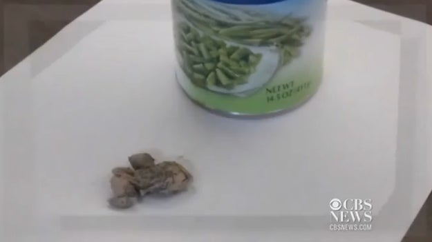 Woman Finds Toad in Can of Green Beans