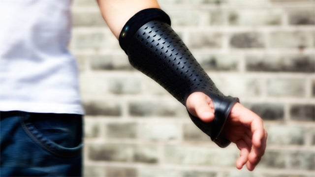 Monitor Broken Bones With a High-Tech Cast
