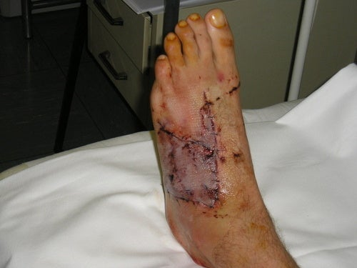 Blood Writes: The Mangled Foot From Switzerland (WARNING: UGLY FOOT ALERT)