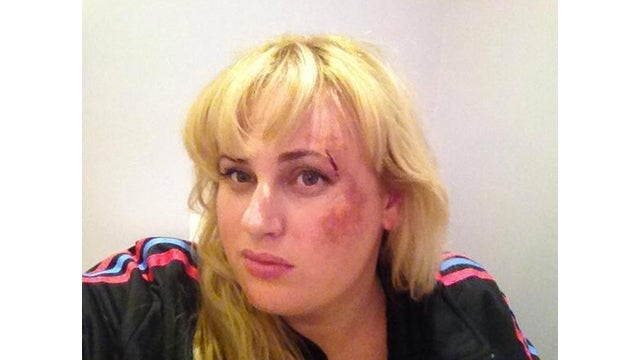 Rebel Wilson Throws Down With Some Mean Feral Cats
