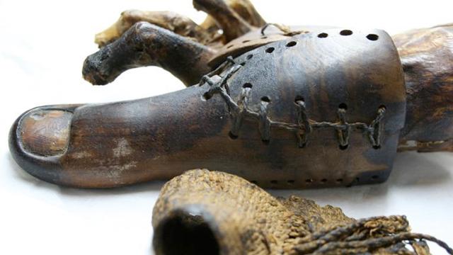 Egyptian mummy reveals the world's earliest prosthetics — toes!