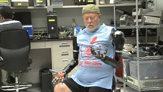Holy Crap, This Guy's Got Two Mind-Controlled Robot Arms!
