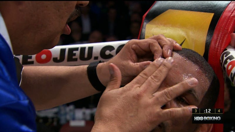 HBO Boxing Extreme Closeup Is Really Gross [Not Safe For Stomachs]