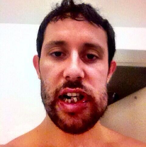 Sam Gagner's Broken Jaw Is Grotesque