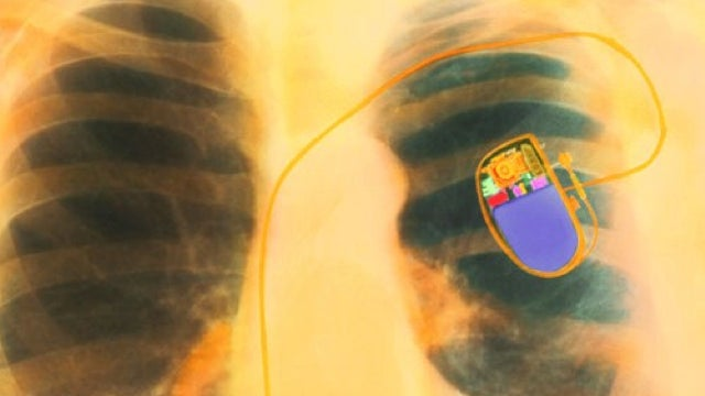 A virus that reprograms your pacemaker to deliver an electric shock