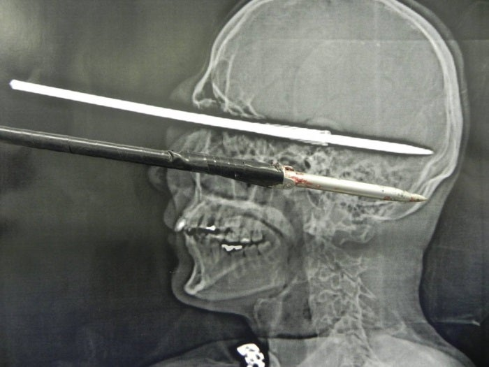 Harpoon Pierces Man's Skull in Cleaning Accident, Doesn't Damage Brain
