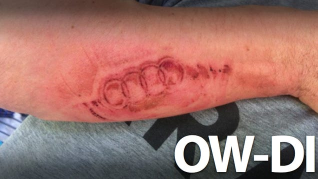 An Exploding Airbag Branded An Audi Logo On This Man S Arm