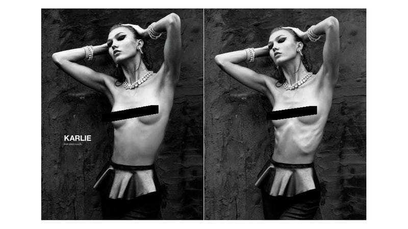 Karlie Kloss Loses Her Ribs to Numéro's Photoshopping